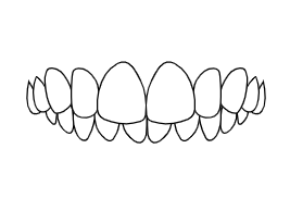 Overbite | Luxe Dental Care